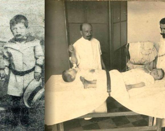 La prima trasfusione di sangue bresciana avvenuta nel 1913