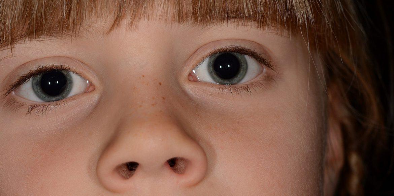 Teleangectasia Emorragica Ereditaria
